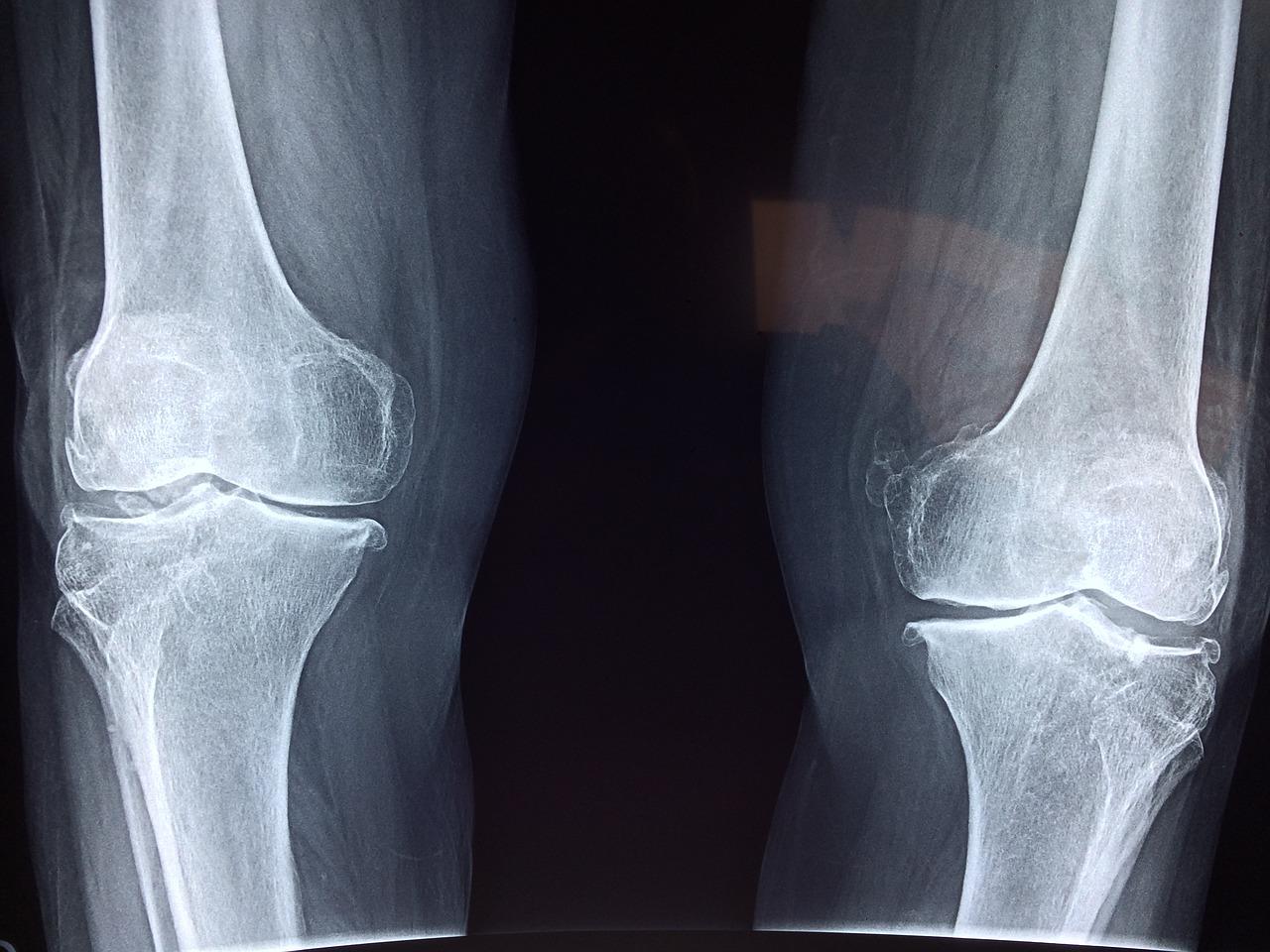 Powrót do zdrowia. Sklep medyczny ortopedyczny – rehabilitacja kolana Kraków